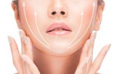 剥离型面部提升术才是效果长久的线雕-陈史宏
